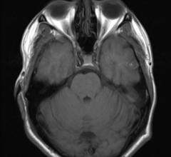 MRI, brain scans, shrinkage, dementia with Lewy bodies, Alzheimer's disease, Neurology journal study