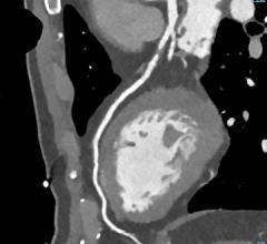 CT angiography, CTA, Medicare population, Harvey L. Neiman, CMS