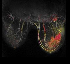 breast MRI, reduce breast biopsies, DWIBS-MRM, German Cancer Research Center