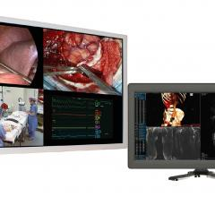 Double Black Imaging, 4K LED displays, clinical and surgical, RSNA 2016