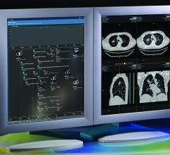HealthMyne, QIDS, Quantitative Imaging Decision Support software, CDS, clinical decision support, RSNA 2016