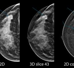 Hologic, RSNA 2015, breast tomosynthesis, breast biopsy systems