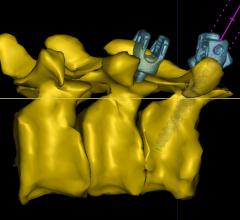 Philips, augmented-reality surgical navigation technology, spine surgery