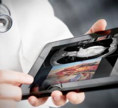 Vital Images, Karos Health, acquisition, enterprise imaging, healthcare interoperability platform, RSNA 2016