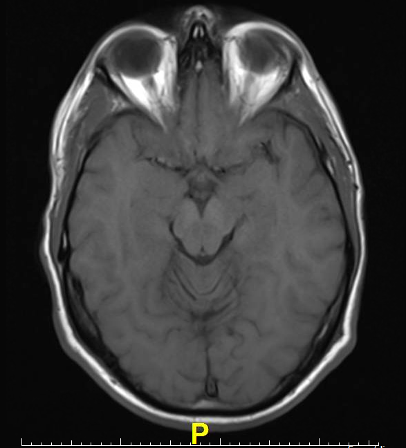 MRI Brain Scans Detect People With Early Parkinson\'s | Imaging ...