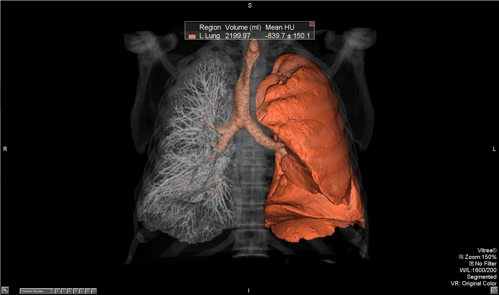 New Hybrid Cad Scheme May Improve Ct Lung Nodule Detection Imaging