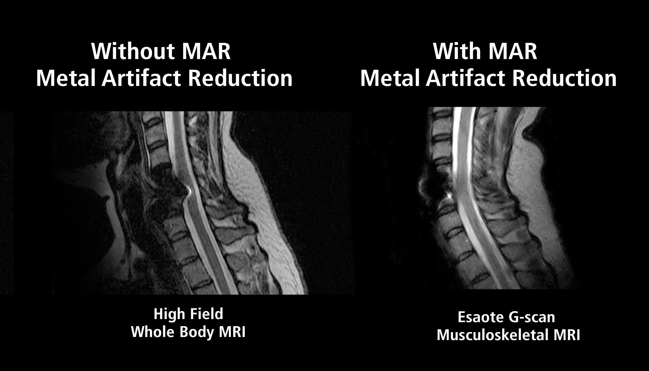 Esaote Introduces Metal Artifact Reduction MRI Sequence | Imaging ...