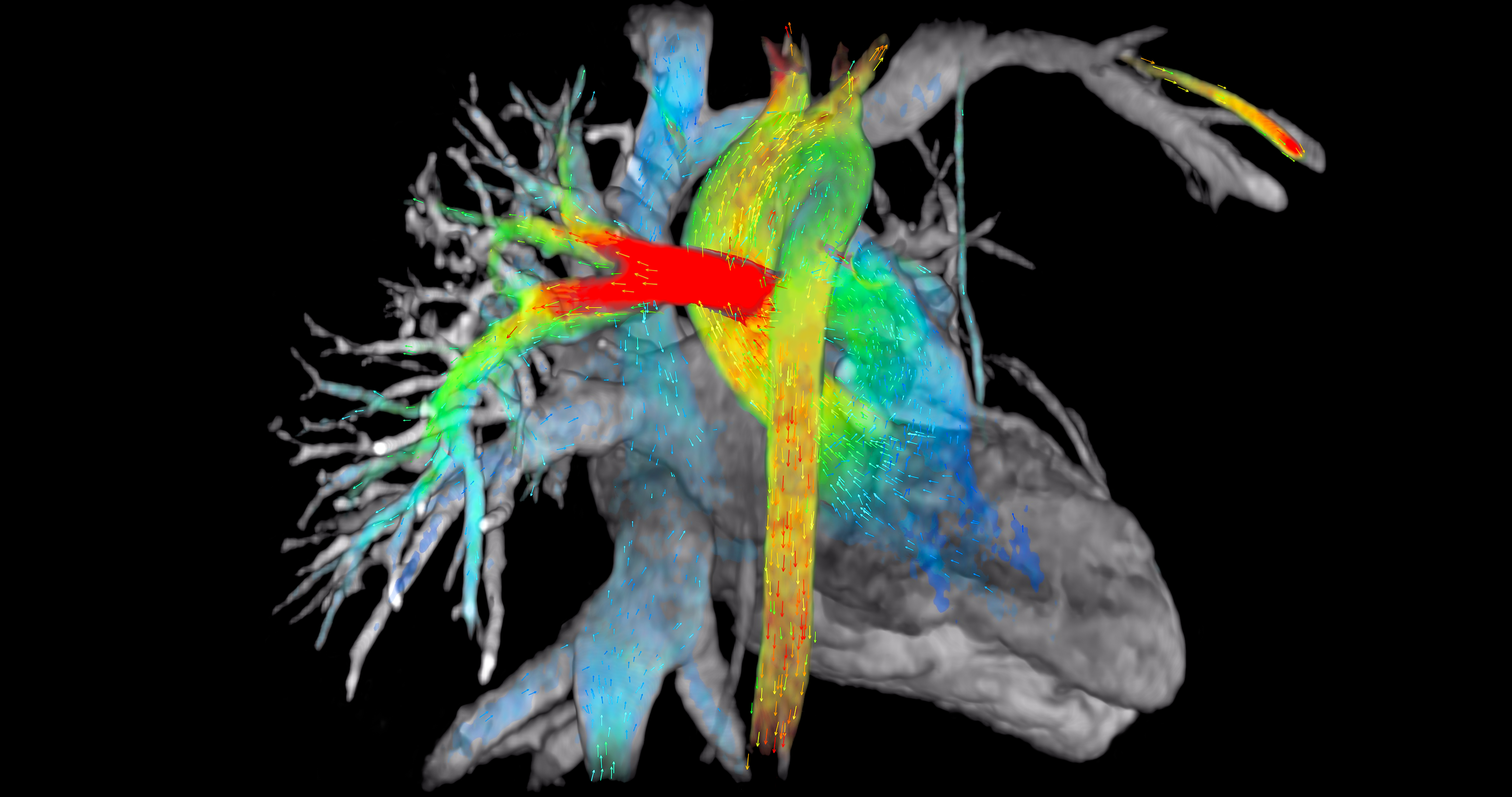 GE Unveils Software to Greatly Simplify Cardiac MRI Workflow ...