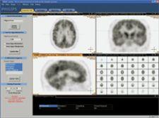 MR-PET Opens New Doors for Neurology