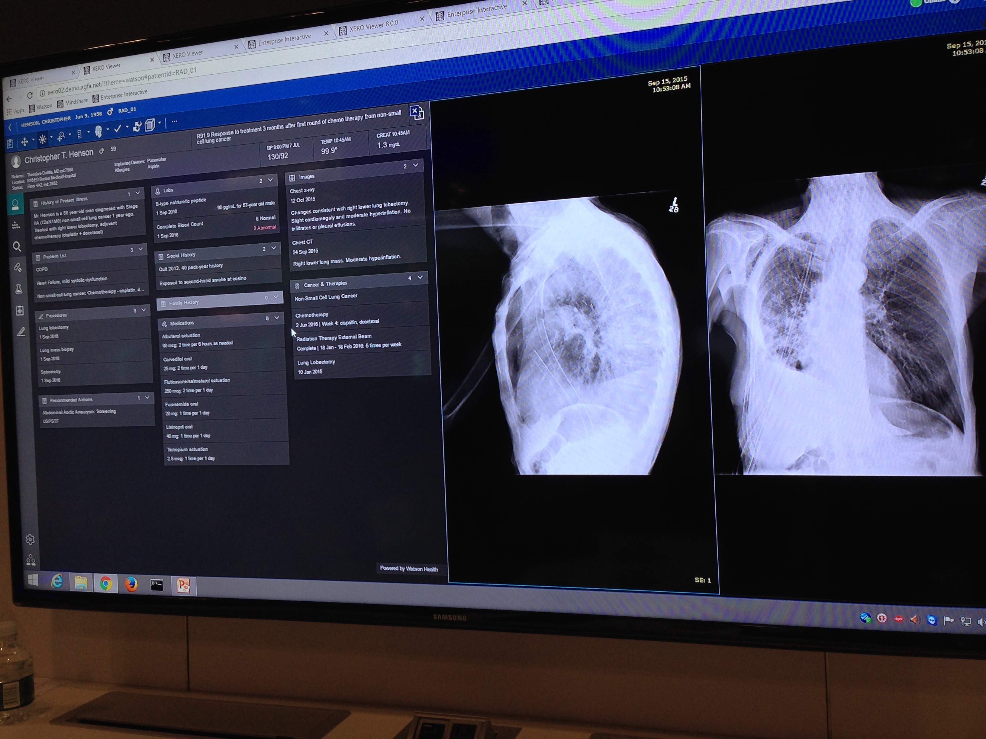 How Artificial Intelligence Will Change Medical Imaging Imaging