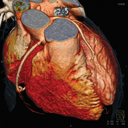 A 3-D rendering of a cardiac CT angiography imaged by a Siemens Somatom Definition Flash CT scanner.