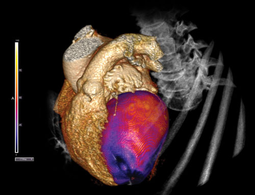 CT perfusion