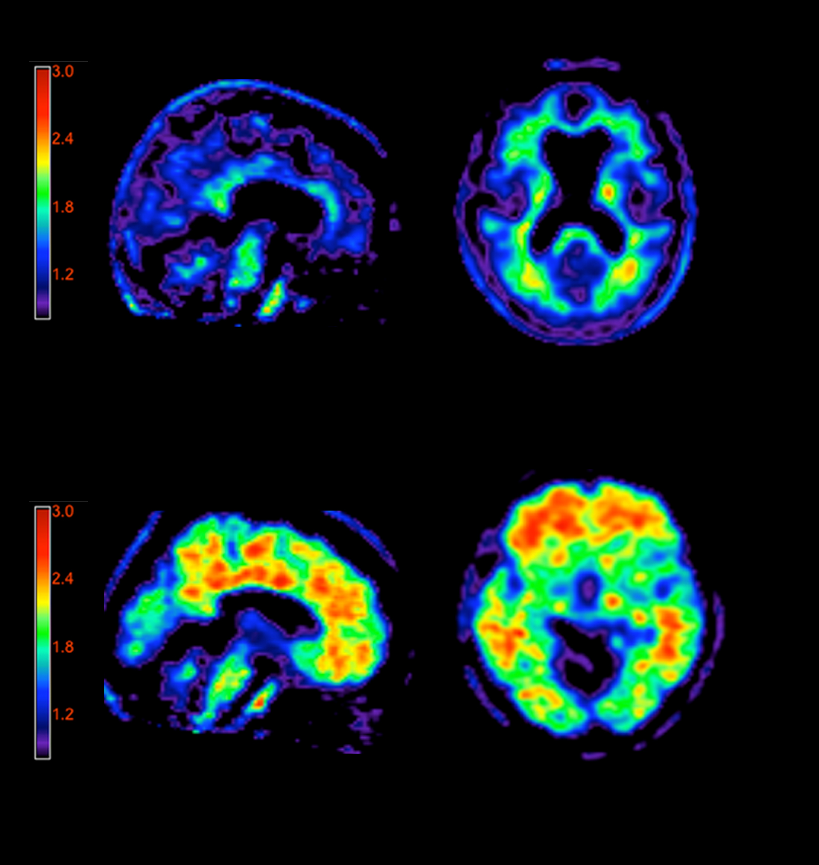 brain imaging technologies in research of A range of imaging technologies now provide unprecedented sensitivity to visualization of brain structure and function from the level of individual moreover, as in other areas of biomedical research, these opportunities are interactive as an example, imaging can provide a better understanding about.