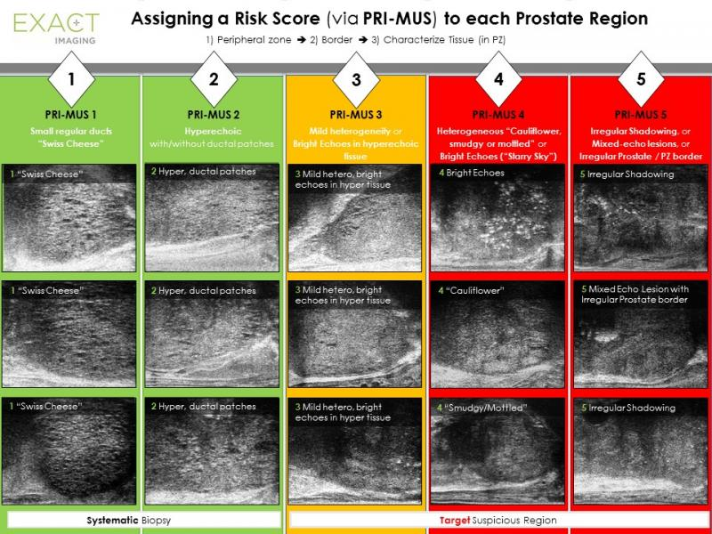 Table showing the PRI-MUS (prostate risk identification using micro-ultrasound) protocol, the first risk identification protocol developed specifically for micro-ultrasound of the prostate.Table showing the PRI-MUS (prostate risk identification using micro-ultrasound) protocol, the first risk identification protocol developed specifically for micro-ultrasound of the prostate.