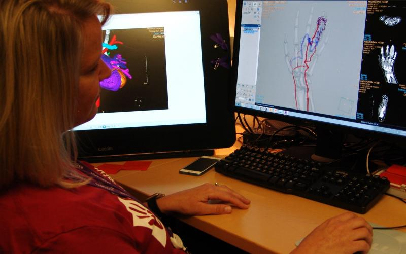 Robyn Augustyn displays an arteriovenous malformation that was fixed interventionally on the basis of a volume rendering created using Philips' IntelliSpace Portal at Phoenix Children's Hospital.