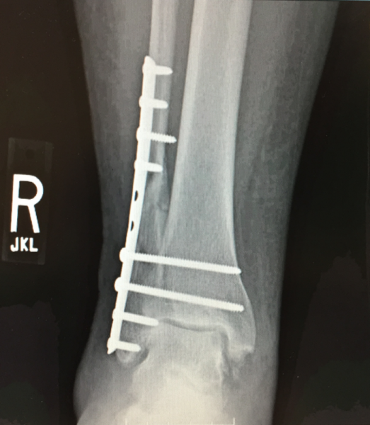 A orthopedic reconstructive surgical repair of a Pott's fracture of the fibula. Patient Marilyn Fornell.