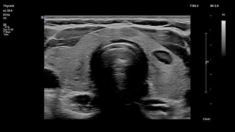 Philips-eL18-4-PureWave-ultrasound-transducer-thyroid