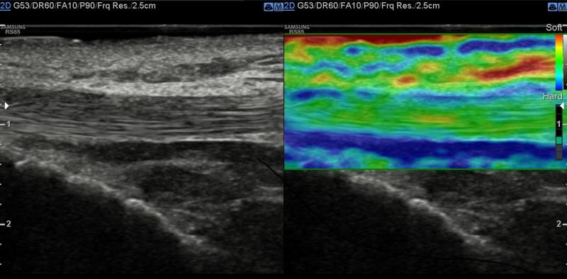 Samsung RS85A Ultrasound Features S-Shearwave Imaging