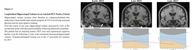 Hippocampal volume increase in depressed patient on MRI