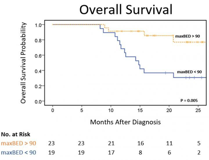 MRIdian MRI-guided radiotherapy overall survival for pancreatic cancer patients