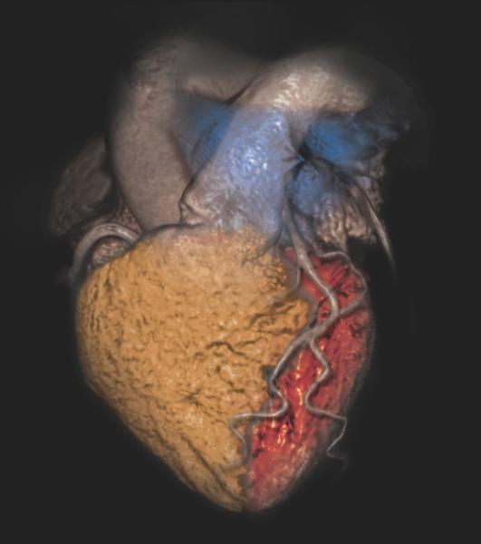 CT Systems Cardiac Ultrasound MRI Nuclear Imaging