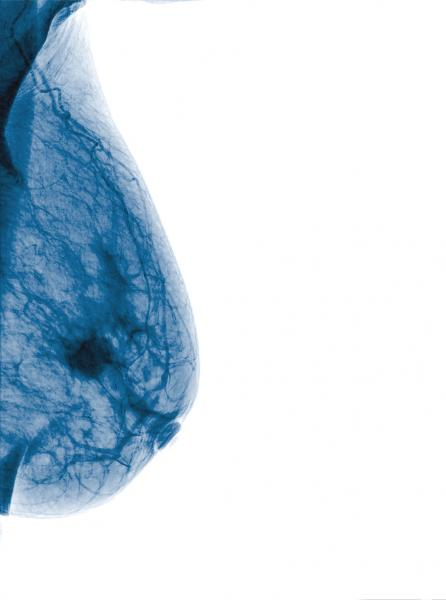 Breast imaging X-ray mammogram showing a breast tumor. Photo courtesy of Monthian Ritchan-Ad