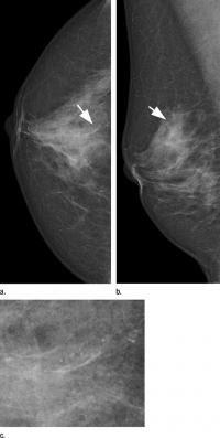 Mammography Systems Women's Health Clinical Study DR CR Radiation Dose