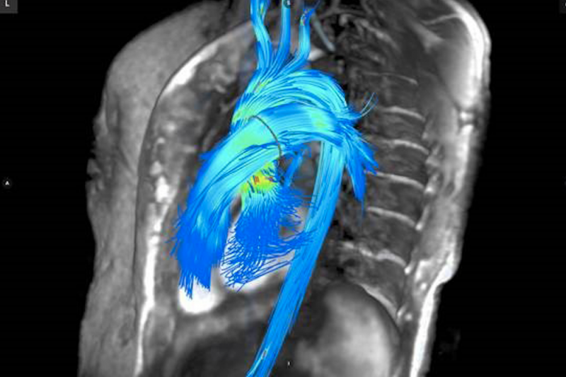 Recent MRI technological advances have opened up the possibilities for greater cardiac use of the costly imaging modality
