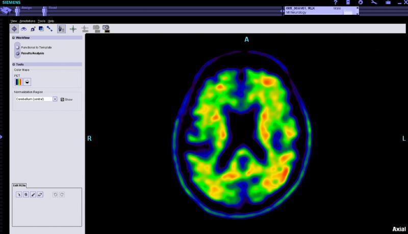 SNMMI Alzheimer's Association Medicare Decision CMS Beta Amyloid PET Coverage