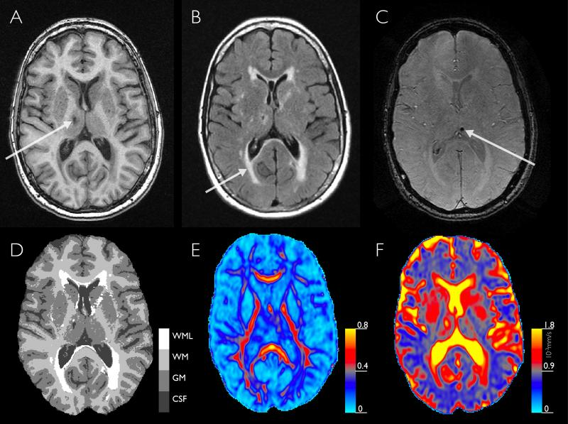 Structural and microstructural brain changes on MRI.