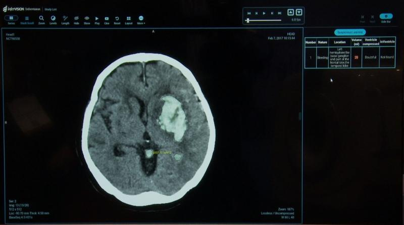 The artificial intelligence (AI) smart algorithm onboard the Infervision stroke product calculates the volume of bleed on the basis of multiple brain CT slices.