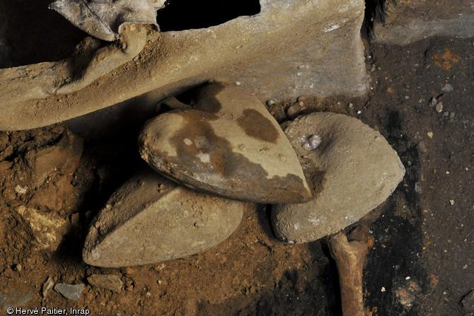 Imaging Yields Evidence of Heart Disease in Archaeological Find