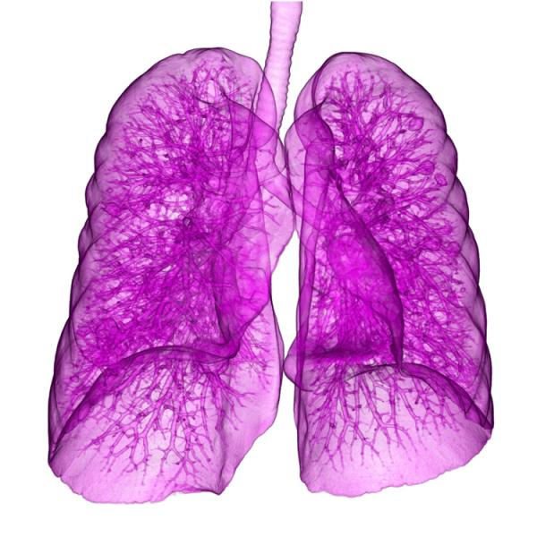This image, taken with Canon's Aquilion One, shows a lung with metastases from bowel cancer.