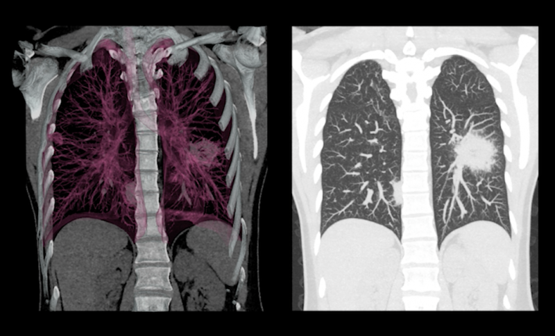 A low-dose lung CT scan can be used to help detect mesothelioma.