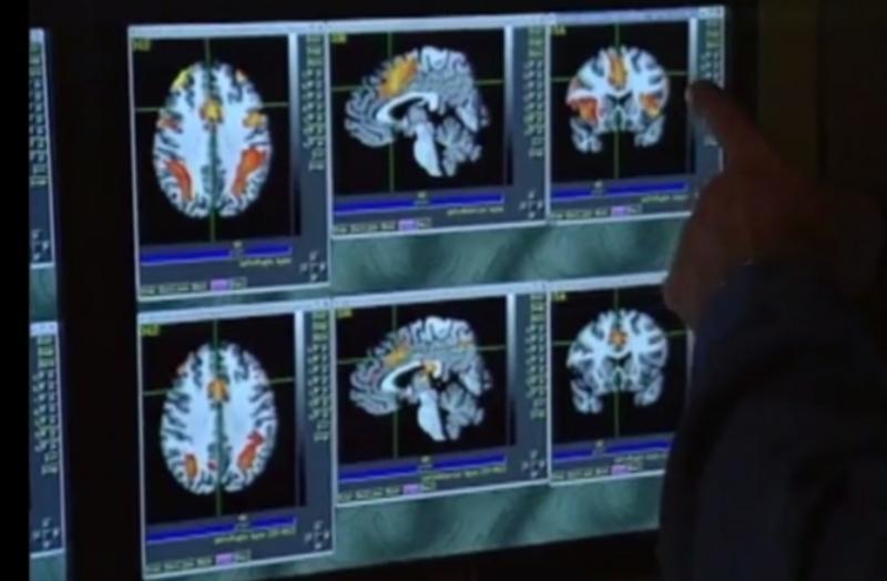 MRI, athlete brain, concussion study, RSNA 2015