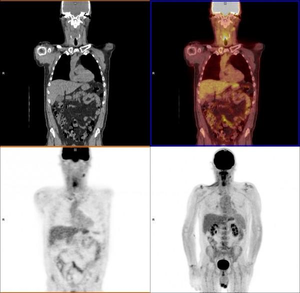 PET, PET imaging, PET-CT, FDG PET, PET cancer assessment