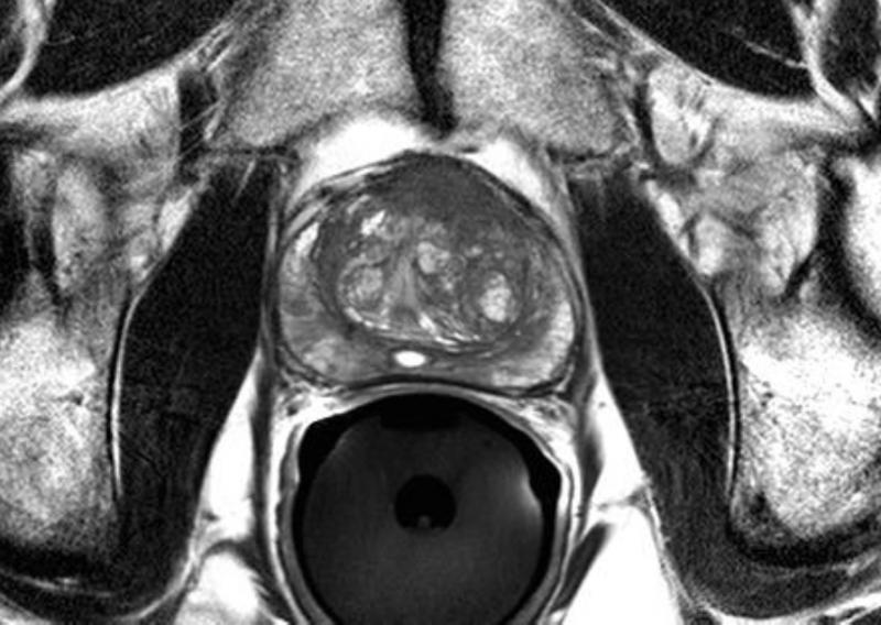 mri systems prostate technology radiation therapy ronald wheeler