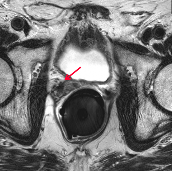 The arrow in this image points to the prostate cancer.