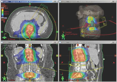 Varian Eclipse Proton Therapy Treatment Planning for a Spinal case.