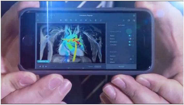 MRI advances, innovations in MRI, most popular radiology stories
