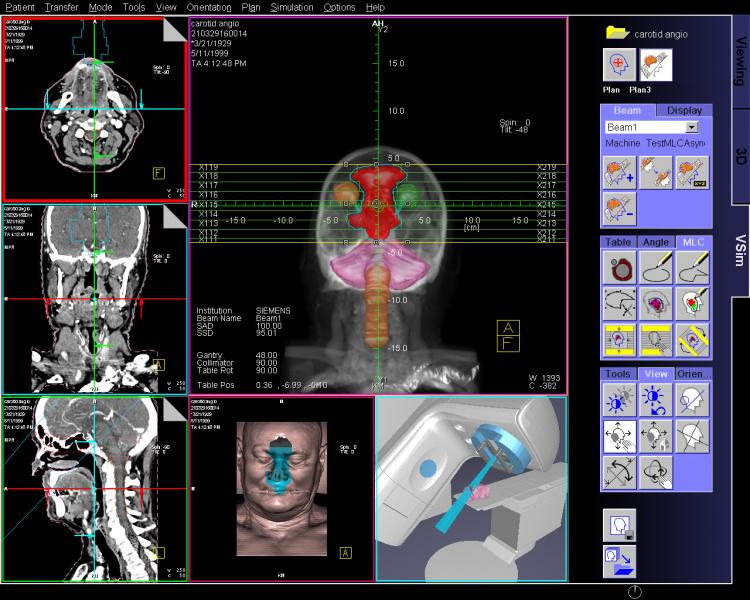 Treatment Planning systems, RT planning software