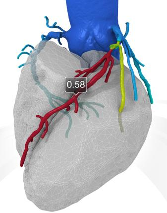 The Latest Advances in Coronary CT Angiography Software