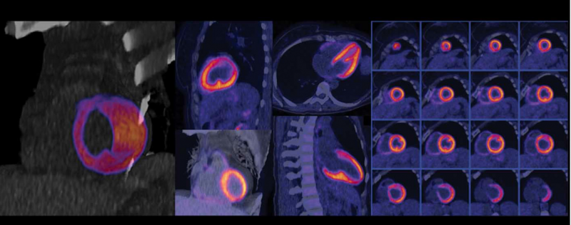 A myocardial perfusion exam performed on the Siemens Biograph Vision PET-CT system.