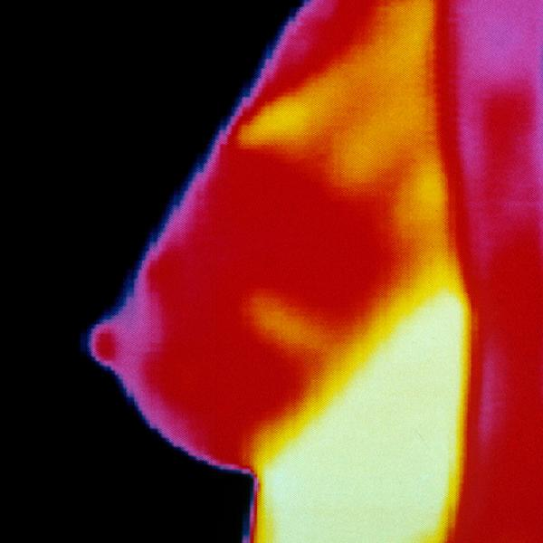 FDA Warns Thermograms Are No Substitute for Mammograms