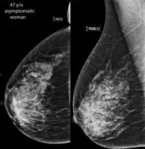 Philips SonoCine Automated Whole Breast Ultrasound Imaging AWBUS EPIQ iU22