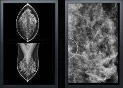 VuComp, M-Vu CAD, digital breast tomosynthesis, DBT