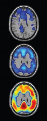 florbetaben, beta-amyloid plaque, Alzheimer's, Piramal, PET