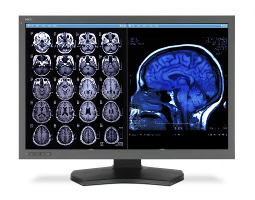 multiple sclerosis MS patients, rs-fMRI, neuro imaging, video games, Radiology journal