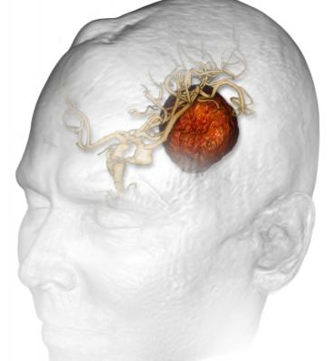 aggressive brain cancer, glioblastomas, combination therapy, Sidney Kimmel Cancer Center study, Thomas Jefferson University