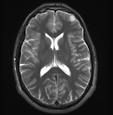 pediatric medulloblastoma, brain tumor, radiation therapy, boost volume, clinical study, ASTRO 2016